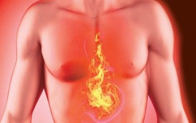 Top 20 Tips for Heartburn